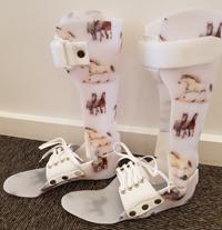 ankelbandage fodkapsel 3