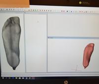 3D scanning af fod