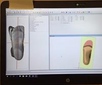 3D scanning af fod overført